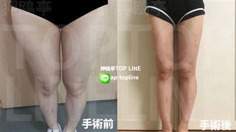 韓国 脂肪 吸引