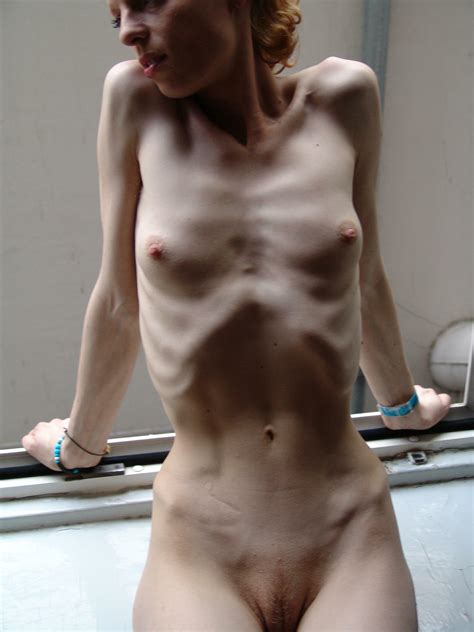 Anorexic Girls Nude Pics