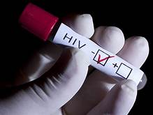 A third person may have become HIV-free after a bone marrow transplant…