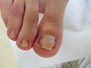 Вылечить грибок ногтей скипидаром