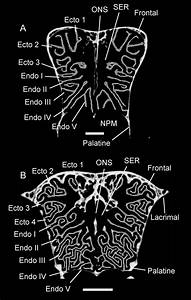 6  Coronal Ct Images Showing The Morphology Of The Ventral