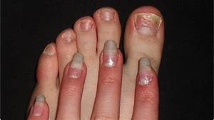 Грибок ногтей лечение уксусом и яйцом рецепт