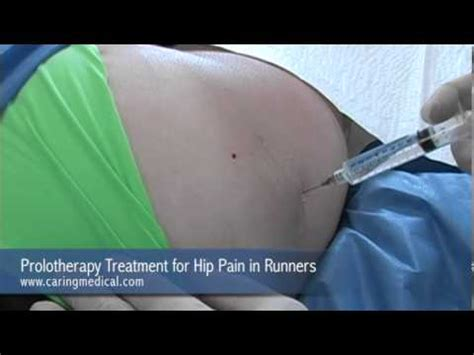 prolotherapy treatment  hip pain  runners youtube