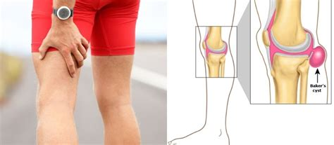Do You Know What Causes Pain Behind The Knee And How To