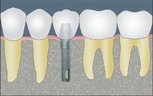A Guide To Dental Implants  U00bb Carolinas Center For Oral