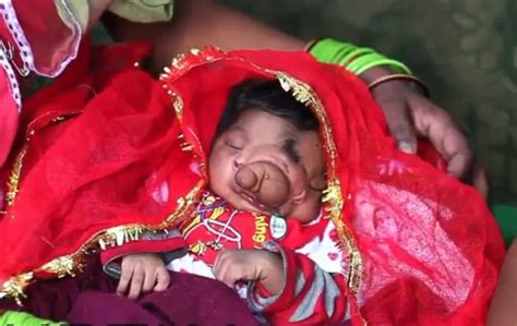 girl born  india   trunk worshipped  locals
