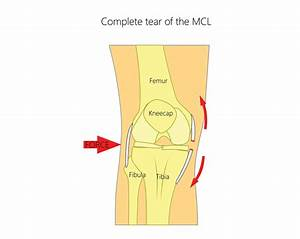 Medial Collateral Ligament  Mcl  Tears