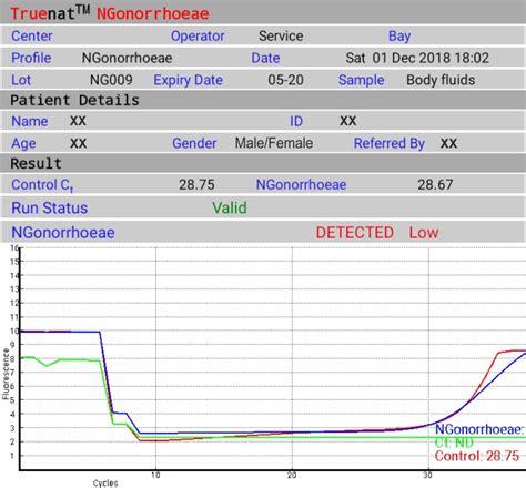 Molbio Diagnostics Pvt. Ltd.