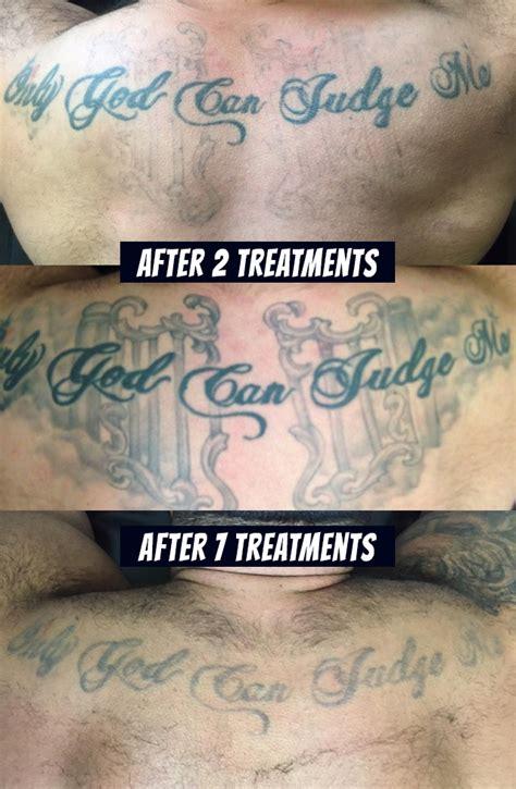 skin laser tattoo removal victoria bc tattoo