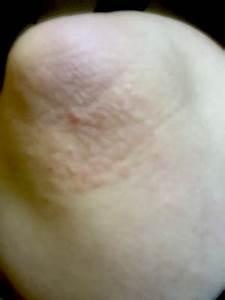 Dermatitis Herpetiformis Leaves Me A Little Rough Around ...