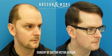 hasson wong hair transplant vancouver strip
