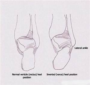 Peroneal Tendon Subluxation | Causes and treatment options ...