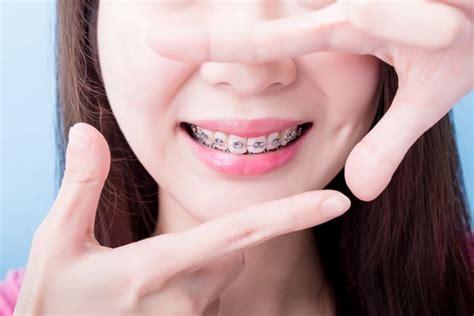 子供 歯科 矯正 お金 が ない