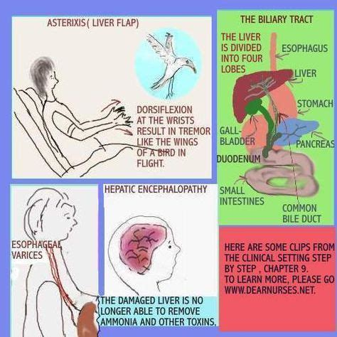 asterixis liver flap nursing leadership nursing