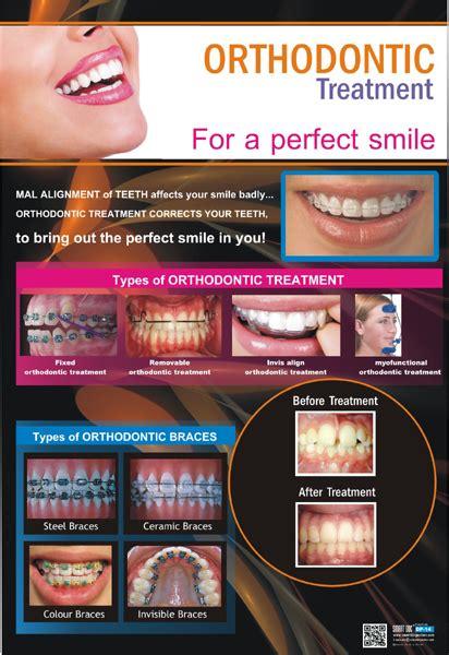 types  orthodontic treatment  types  braces