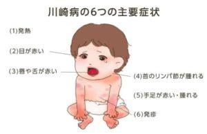 川崎 病 と は