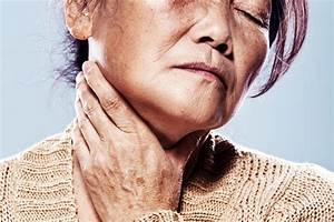 Throat Cancer Signs  U0026 Symptoms