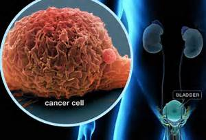 Bladder Cancer Pictures: Warning Signs, Treatments, Survival Rates Bladder Cancer