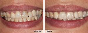 Root Canal Crown Before And After | www.pixshark.com ...