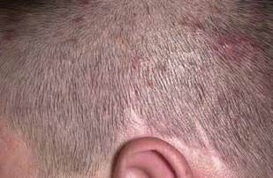 Small Red Bumps On Scalp