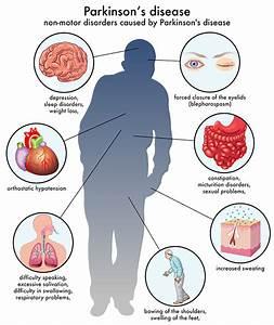 Parkinsons Disease - German Neuroscience Center Dubai