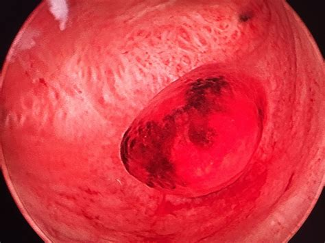 jean louis criscuolo gyn 233 cologue obst 233 tricien mont de marsan chirurgie gyn 233 cologique landes