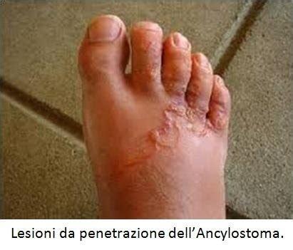 Vermi Nel Sedere by Parassiti Nell Intestino Roma Dott Prof Iannetti