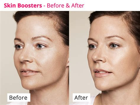Restylane Skin Boosters Face Clinic London