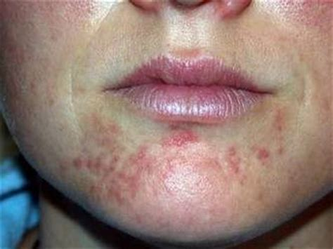 periorale dermatitis hautarztpraxis dr med erik senger