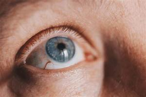 Keratitis  Symptoms  Causes  Diagnosis  Treatment  And