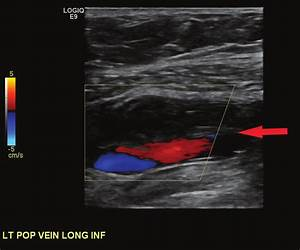 Lower Extremity Venous Duplex Ultrasound Showing A Deep