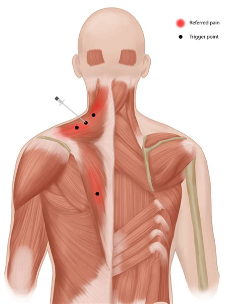 Trigger Point Injections in OKC - Oklahoma Pain Management