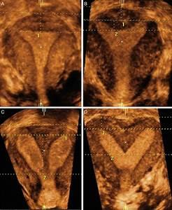 Coronal 3d Us Views Of The Uterus   A  A Normal Uterus