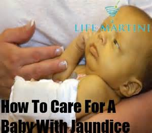Newborn Babies with Jaundice