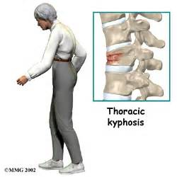 Compression fractures of the back as related to bone fracture related document a patients guide to osteoporosis compression fracture compression sciox Choice Image