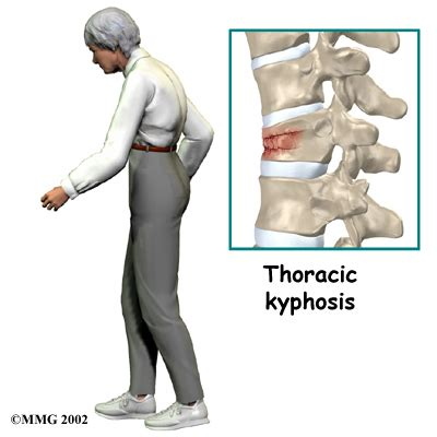 Spinal Compression Fractures  Eorthopodcom. Internet Cable Providers In My Area. Goodwill Car Donation Program. Radiology Billing Software Divorce Lawyer Nh. Online Ministry Certificate Programs. Excelsior Nursing Program Inspecting A House. Surgical Tech Schools In California. Health Education Degree Online. Online Bachelors Degree In Social Work
