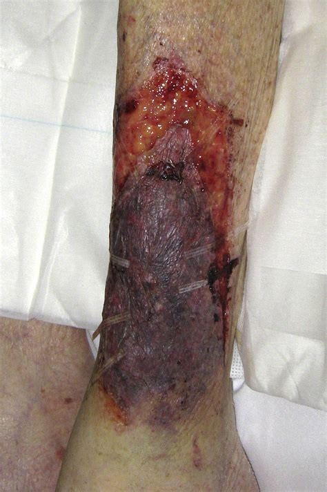 tertiary management  pretibial lacerations journal