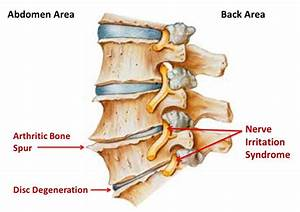 Spinal Osteoarthritis  U2013 Premier Chiropractic Centre