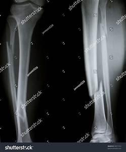Xray Both Human Legs Broken Legs Stock Photo 59671333 ...