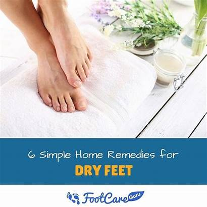 Feet Dry Remedies Effective Simple Luckily Quickly