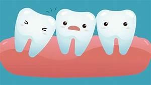 The Wisdom Teeth Dummies Guide