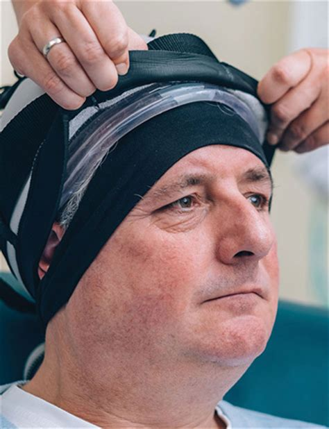 men  affected  hair loss   cancer