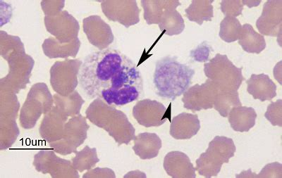 ehrlichia in dogs figure 4 morula in neutrophil and a microplatelet 1000x wright s stain eclinpath