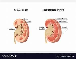 Pyelonephritis Royalty Free Vector Image