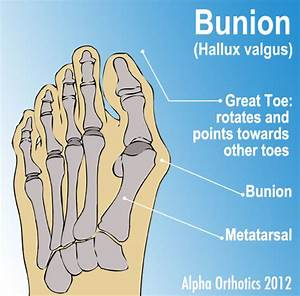 3  All About Bunions