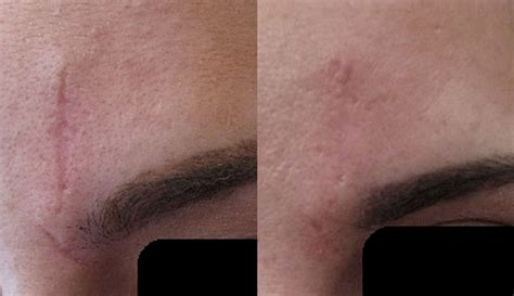 Secret RF Microneedling Before and After Pictures in ...