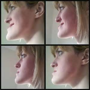 Before and After Jaw Surgery Under Bite