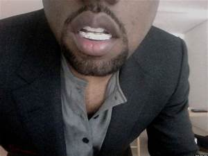Kanye West's Diamond Teeth: Is He Embarrassed By His ...