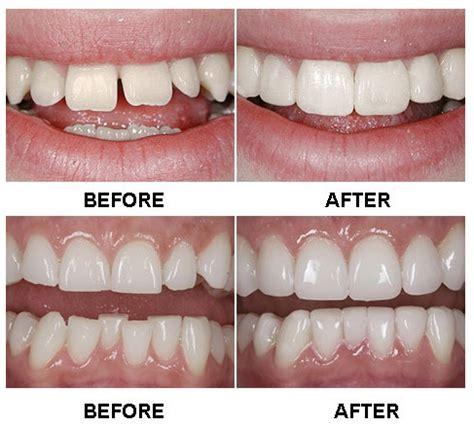 veneer cost componeers innovative new dental veneers my highest self