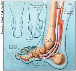 Tibialis Posterior Stretch